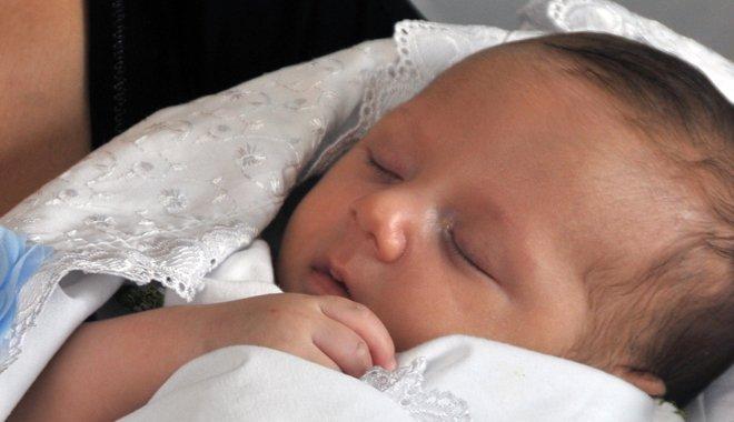 45 Günlük Bebekten 300 Gram Kist Alındı