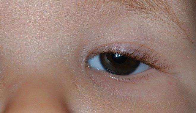 Çocuklarda Göz kapağı Düşüklüğü Önemsenmeli