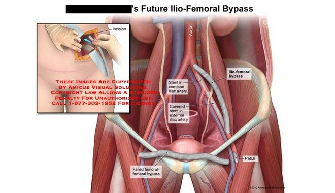 Diyabet hastalarına bypass ve stent çok sık uygulanıyor