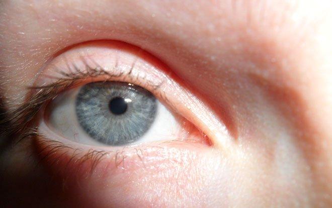 Göz Kapağı Düşüklüğü Akciğer Kanseri Habercisi Olabilir