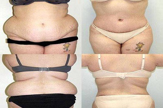 Liposuction mı karın estetiği mi?