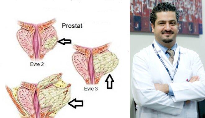 Soğuk Havalar Prostat Şikayetlerini Tetikliyor