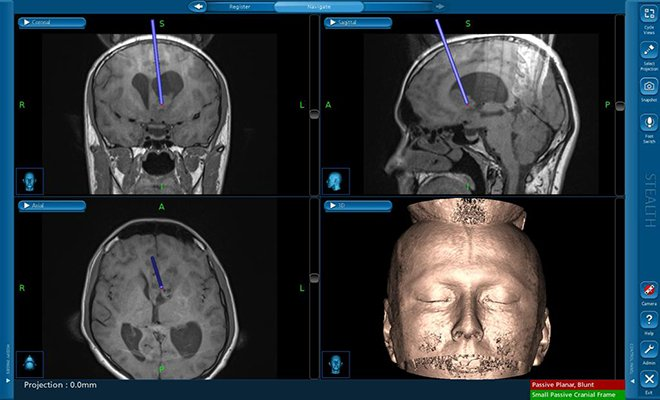 Tümör cerrahisinde yeni görüntüleme yöntemi