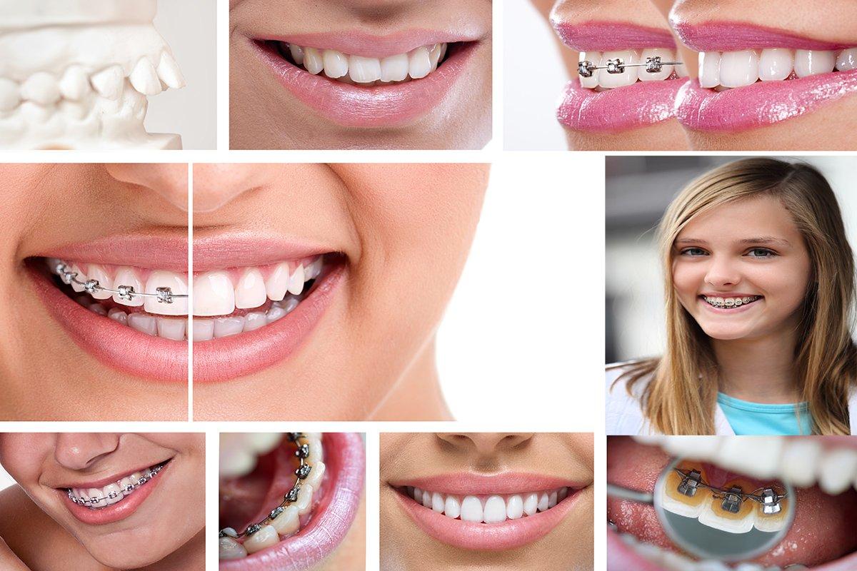 Yaşça büyük kimseler diş teli takamaz